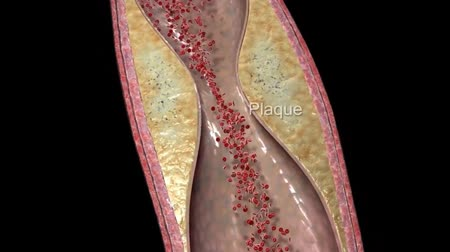 hypercholesterolemia : Plaque clogged artery.3D Animation