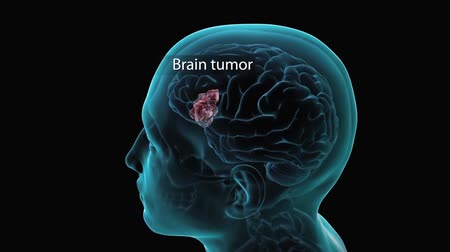 braun : Human Brain Tumour
