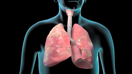 graphic arts : An Animation Shows Lung Cancer