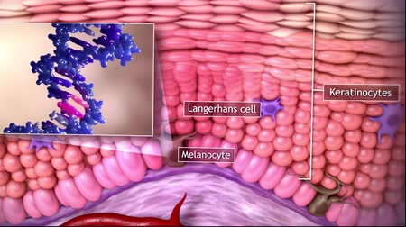 terapia : Tumor growing under skin tissue Wideo