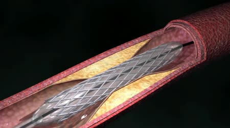 angioplasty : Stent angioplasty procedure, 3D animation