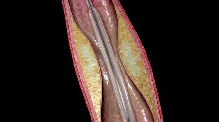 titanium : Stent angioplasty procedure, 3D animation