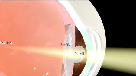 intraocular : Eye anatomy - Medically accurate 3D animation.