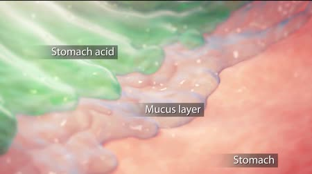convex : 3D animation of the Gastric ulcer, 4K Ultra HD. The crater ulcer in the gastric Stock Footage