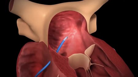 weefsel : Radiofrequentie Energie, Cryoblation, linker Atrium Focal Ablation 3D-animatie Stockvideo