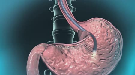 invasive : endoscopy hd aniamation Stock Footage
