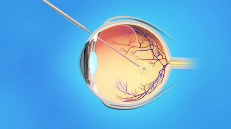 blindness : Vitreoretinal eye surgery includes a group of procedures.