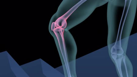 diz : Injured Human Knee Medical Scan Stok Video