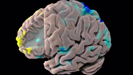 мысли : 3D Medical Animation of human brain Colorful Neuronal Activity on black background