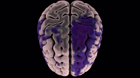 corteza : Human brain color MRI scan on black background