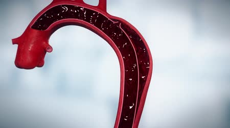 scalpel : 3D animation of the abdominal aortic aneurysm Stock Footage