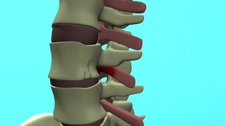 compressor : Animation of a healthy lumbar spine. The effects of arthritis include the projection of osteophytes.