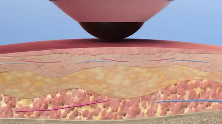 sc : Animation simulation of fractional Laser Resurfacing surgery