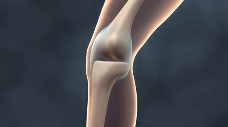 kolano : 3D Medical Animated Joint Diseases. Pain, swelling and stiffness in joints