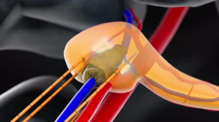 oncology : pancreatic cancer electricaltherapy 3d animation