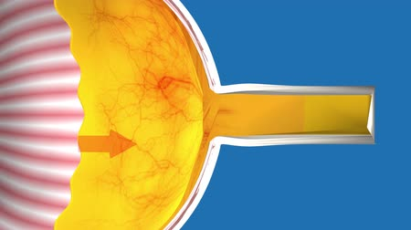 intraocular : Low-tension or normal-pressure glaucoma. In the eye of the optic nerve is normal.