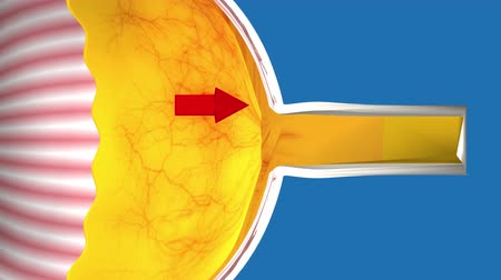 pupillary : Low-tension or normal-pressure glaucoma. In the eye of the optic nerve is normal.