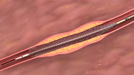 chirurgie : Animation of balloon angioplasty. Also available without stent