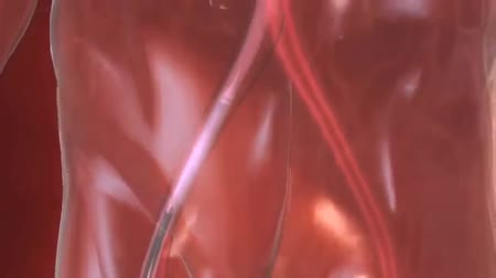 heart failure : Aortic stenosis. Stock Footage