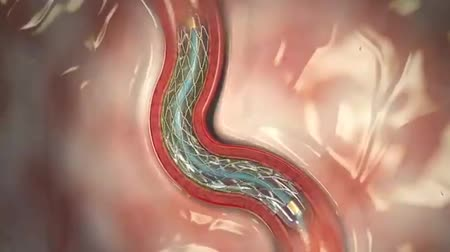 valf : Stent angioplasty Stok Video