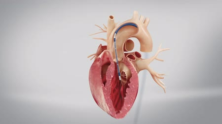 heart failure : Transcatheter aortic valve replacement is a minimally invasive procedure. Stock Footage