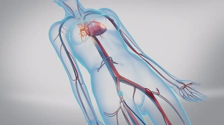 hypertension : Animation of balloon angioplasty. Also available without stent