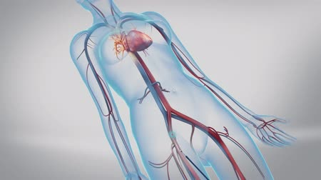 intervention : Animation of balloon angioplasty. Also available without stent