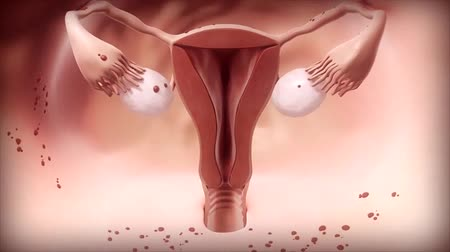 antykoncepcja : Endometrial cancer is a gynecologic cancer that starts in the endometrium.