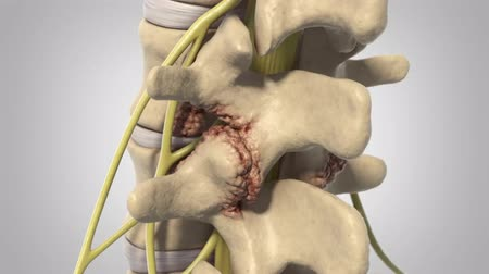 ortopedia : The pressure on the nerve. Slipped or herniated discs. Tumors are infections or arthritis.