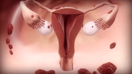 plemniki : Endometrial cancer is a gynecologic cancer that starts in the endometrium.