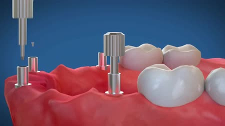defensa : Tooth implant and crown installation process. Medically accurate 3D animation