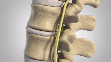 osteoarthritis : Animation of a healthy lumbar spine. The effects of arthritis include the intervertebral discs