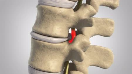ilerici : Animation of a healthy lumbar spine. The effects of arthritis include the intervertebral discs