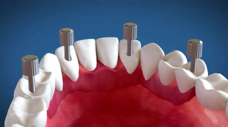tartás : Tooth implant and crown installation process. Medically accurate 3D animation