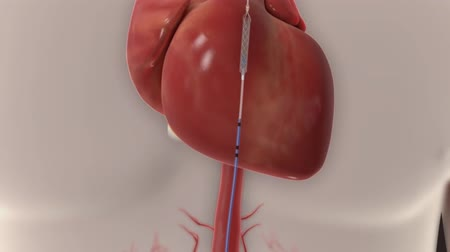 angioplasty : Animation of balloon angioplasty. Also available without stent