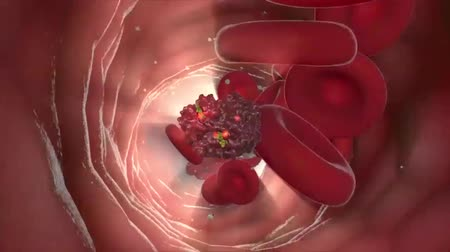 oncology : Mutating blood cell. AIDS. Blood cancer (oncology, leukemia, anemia, hemophilia). Available in high-resolution. 3D animation Stock Footage