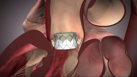 tecido : The heart of the four chambers, two atria and two ventricles. The backward flow of blood. Stock Footage