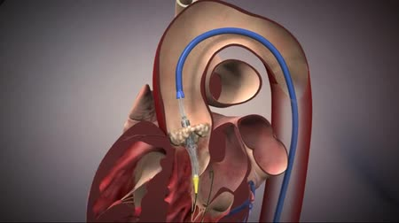 heart failure : Transcatheter aortic valve implantation (TAVI)