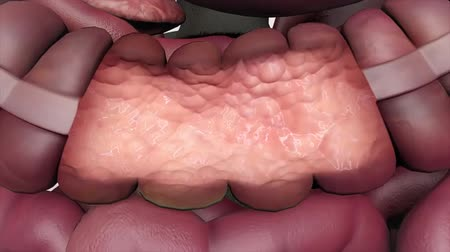 obložení : Colorectal polyp growing on the lining of the colon (large intestine).