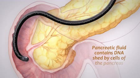 cukorbaj : secretion of pancreatic secretin hormone