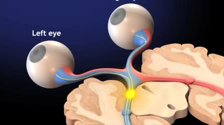 terribly : Optic nerve fibers from the eyes.