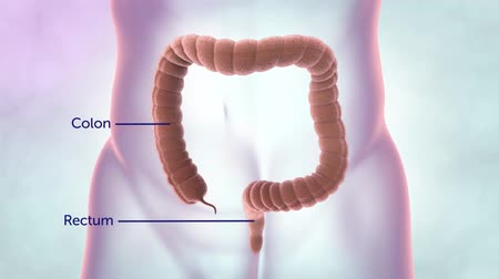 labeled : The intestine is part of the digestive system. It is made up of the small intestine and the large intestine. The colon and rectum are parts of the large intestine.