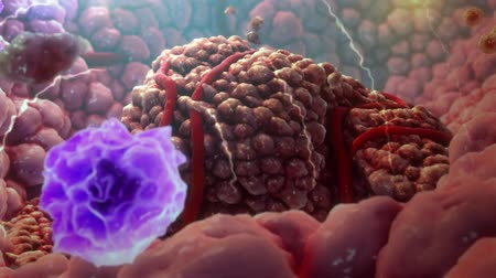 macrophage : The T cells kill cancer cells. They additionally destroy the blood vessel system, thus impeding the supply of nutrients to the tumor. Stock Footage
