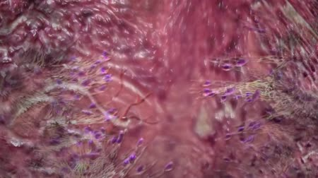reactor : Wound healing is a complex process in which the skin and underlying tissues repair themselves after injury. Stock Footage