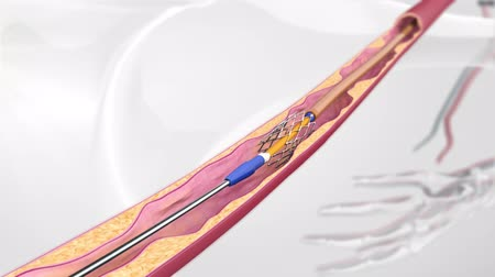 nadciśnienie : Vascular occlusion with a balloon-expandable stent occluder. Illustration of transparent human model on Wideo