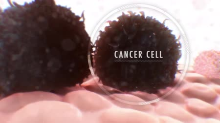 eu : The role of immune cells in cancer progression is well-recognized.