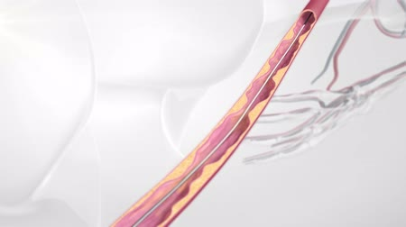 coronary : Vascular occlusion with a balloon-expandable stent occluder. Illustration of transparent human model on Stock Footage