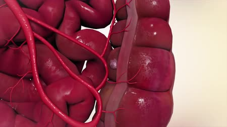 prostata : Colorectal cancer occurs in the colon or rectum. The colon is part of the large intestine or large bowel. The rectum is the passageway that connects the colon to the anus. Wideo
