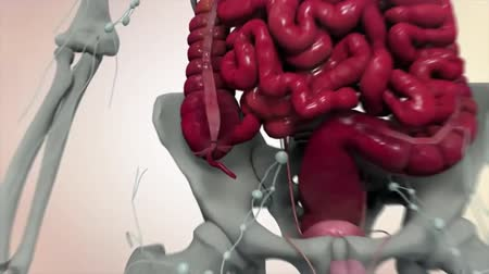 surgical instrument : Colorectal cancer occurs in the colon or rectum. The colon is part of the large intestine or large bowel. The rectum is the passageway that connects the colon to the anus. Stock Footage