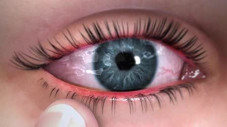 паразитный : Reddish bump on the edge of an eyelid.